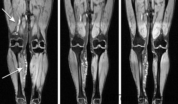 Ayak ve Ayak bileği MR çekimi