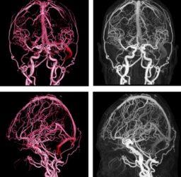Serebral damarların konstriksiyonu 34