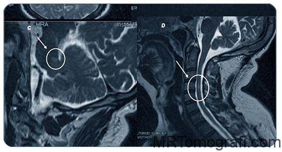 Boyun tomografisi filmi