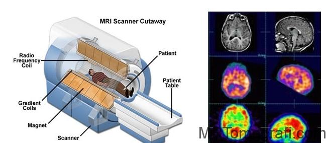 Tomografi cihazı ve fonksiyonları