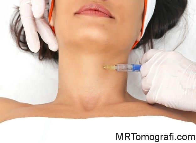 Tiroid Bıyopsisi