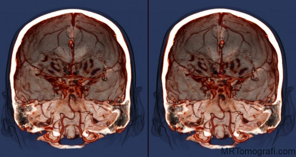 Beyin emarı sonuçları değerlendirme