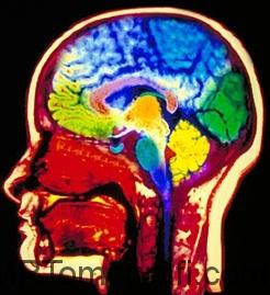 Renkli beyin tomografisi filmi