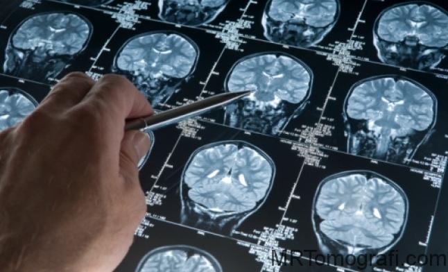 Beyin tomografisinin zararları inceleme