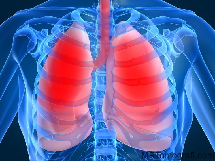 Akciğer Bilgisayar tomografisi filmi