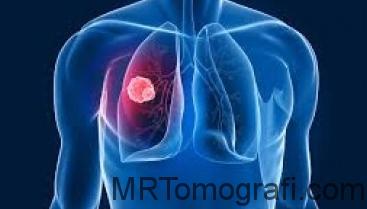 Akciğer tomografisi
