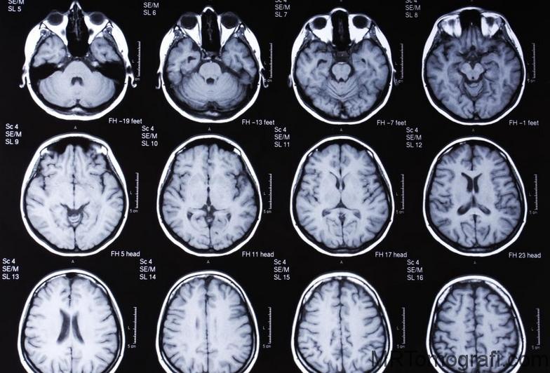 Beyin Emarı çekimi