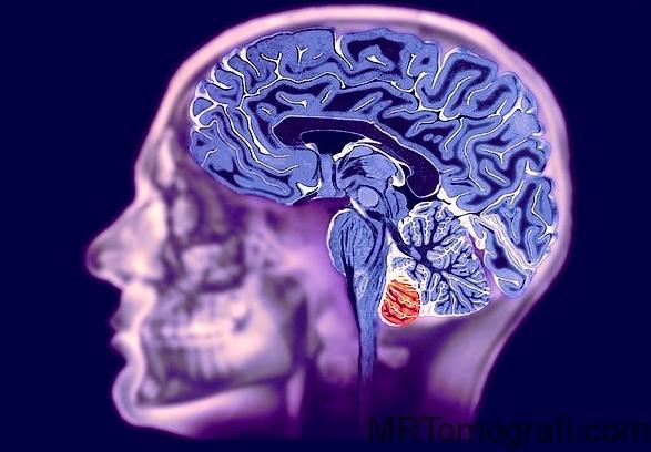 Beyin emarı çekim nedenleri