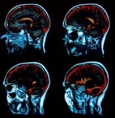 İlaçlı beyin emarı filmi