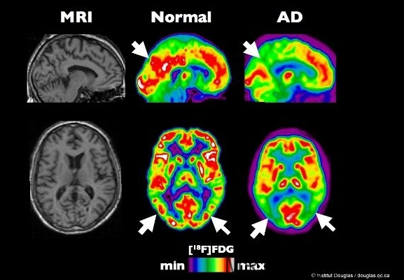 Kontrastlı MR çekimi